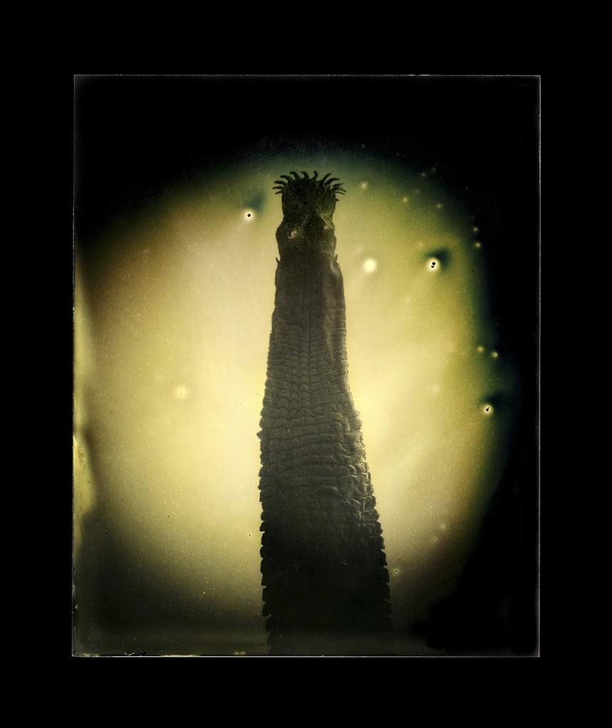 Die Papillome das Merkmal der Parasiten im Organismus